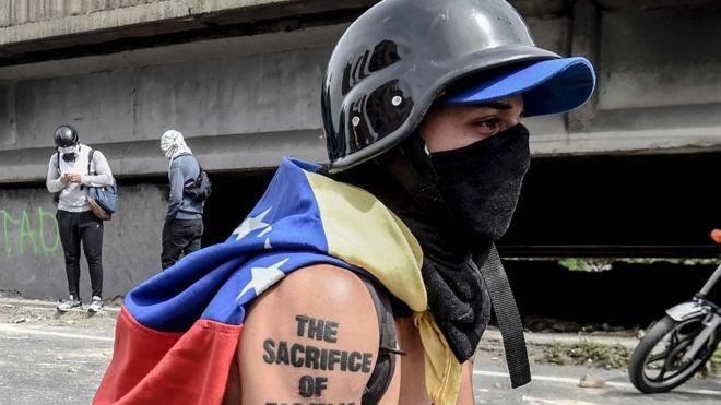 Agresión a Orlando José Figuera: lo que se sabe del joven al que prendieron fuego durante una protesta en Venezuela